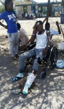 An LGBT refugee sits in a wheelchair after having his leg broken in a hate fueled attack.